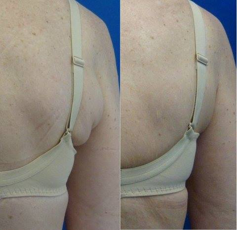 Liposonix back fat treatment before and after photo